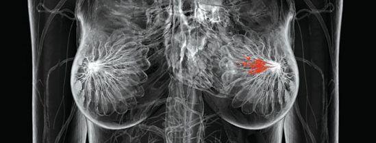 emlő röntgen